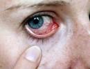 Капли для глаз: или как избежать раздражения слизистой