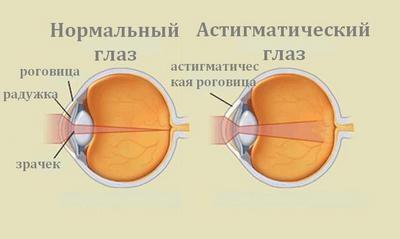 Лазерная коррекция зрения екатеринбург микрохирургия отзывы