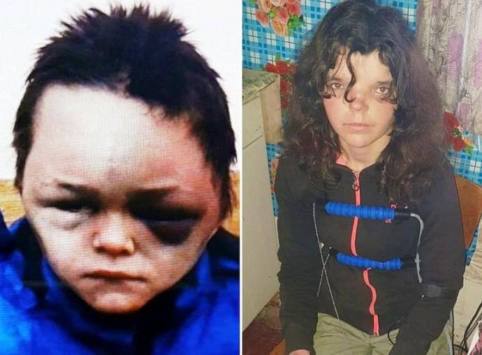 Перевірка на поліграфі визначила, хто побив до жахливих гематом 6-річного хлопчика на Вінниччині (Фото)