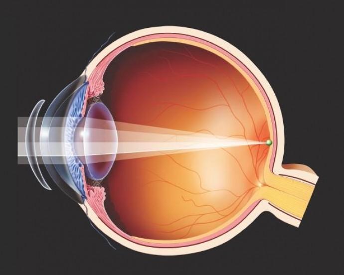 Заміна хрусталика ока лазером: як проходить операція