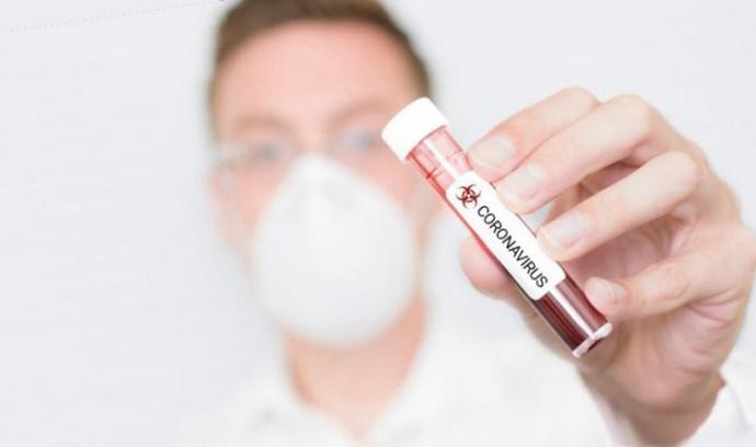 У Вінниці розробили протокол лікування коронавірусу, заснований на іноземному досвіді