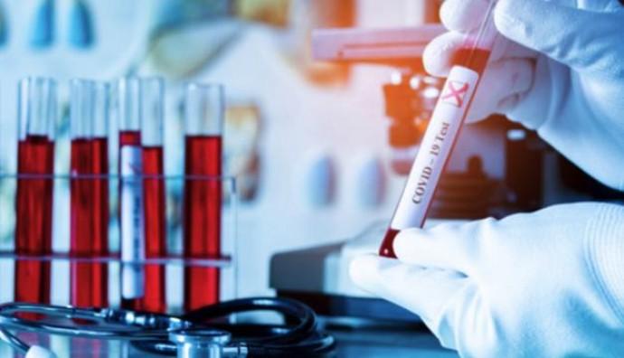 Станом на ранок 6 серпня у Вінницькій області підтвердили 2898 випадків коронавірусу