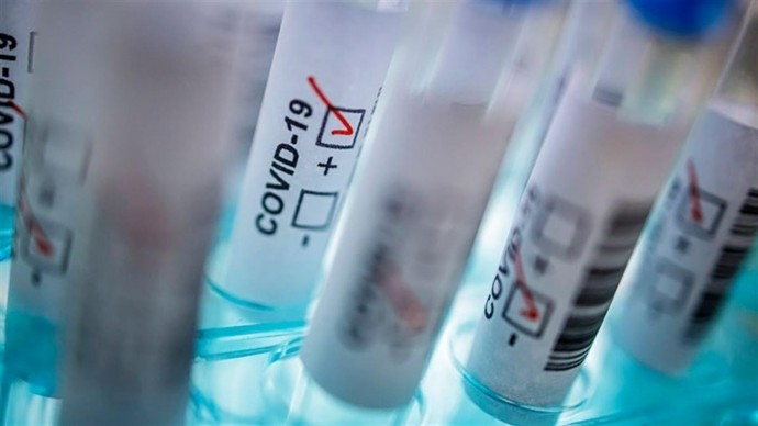 Станом на ранок 21 жовтня у Вінницькій області підтвердили 8644 випадків коронавірусу