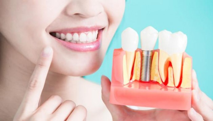 Имплантация зубов. Современные технологии