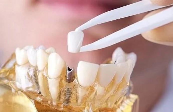 Особенности изготовления зубных коронок