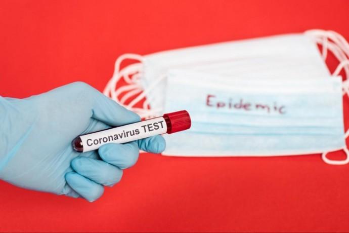 Станом на 11 червня у Вінницькій області підтвердили 70831 випадок коронавірусу