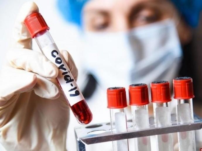 Станом на 20 липня у Вінницькій області підтвердили 71299 випадків коронавірусу