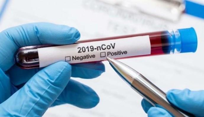 Станом на 21 липня у Вінницькій області підтвердили 71311 випадків коронавірусу
