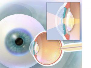 операція заміни хрусталика ока