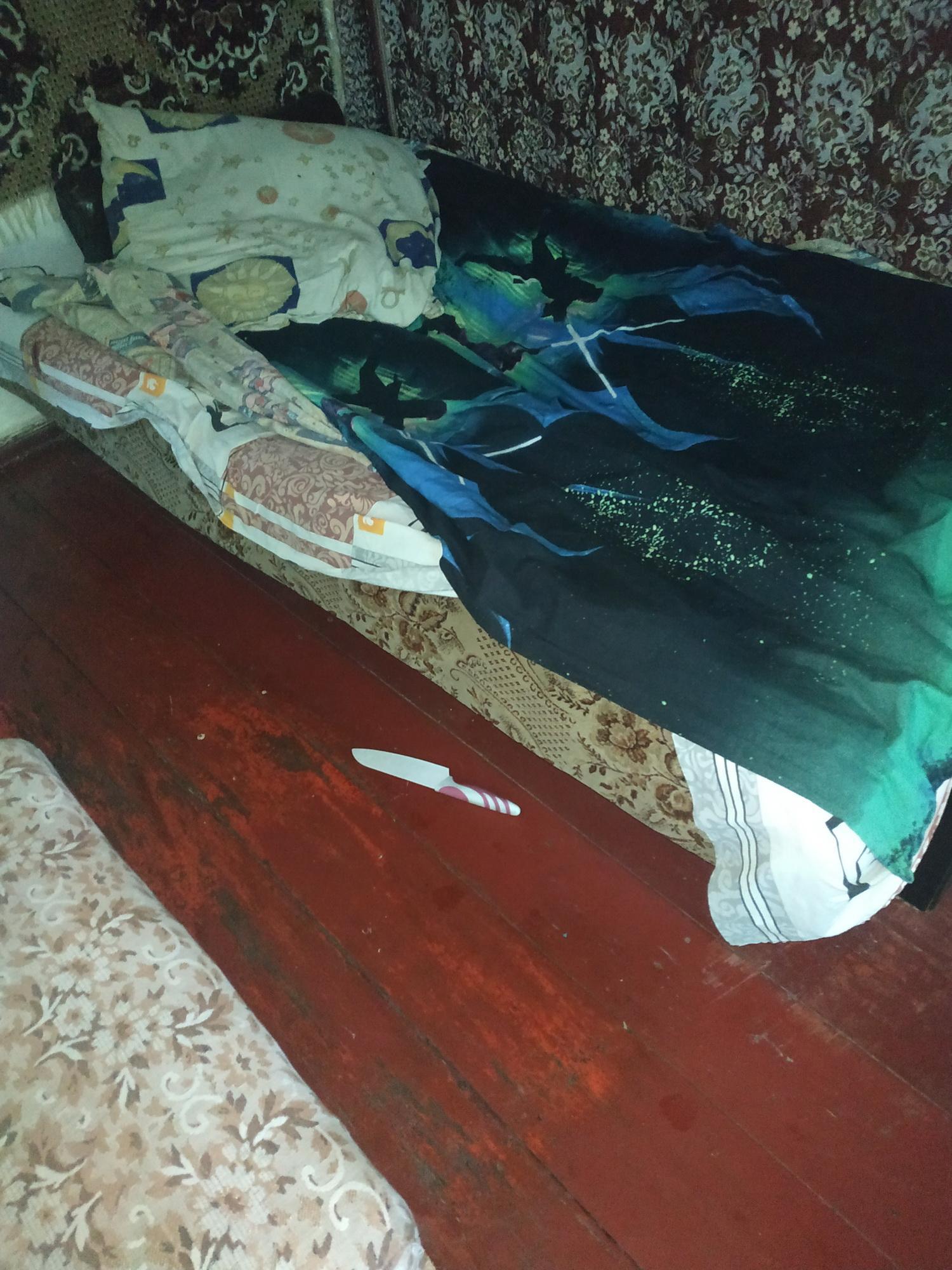 На Вінниччині під час сварки чоловік вдарив ножем у живіт власну дружину (Фото)